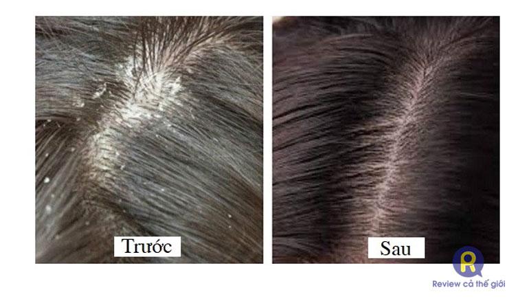 Trước và Sau khi dùng dầu gội đặc trị nấm ngứa